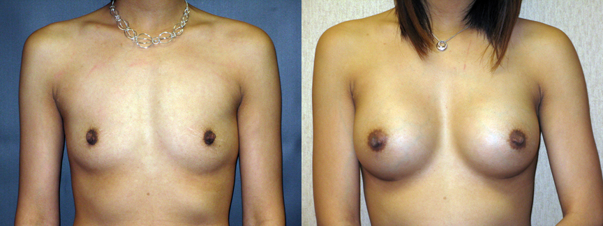 dr dembny-breast_augmentation-silicone-Bcup