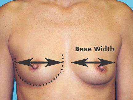 breast-base-width