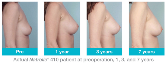 Consistent breast shape with Natrelle 410 years 1 - 7