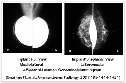 Mediolateral mammogram full vs eklund displaced views