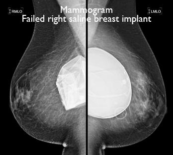 mammogram-failed-right-saline-breast-implant