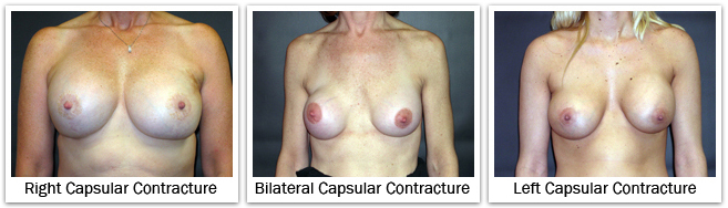 right capsular contracture bilateral capsular contracture left capsular contracture