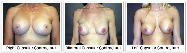 right capsular contracture bilateral capsular contracture left capsular contracture