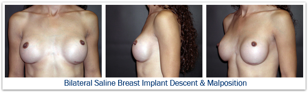 Bilateral saline breast implant malposition