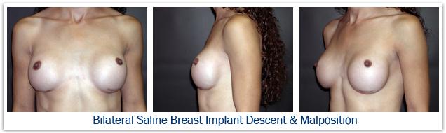 Bilateral saline breast implant malposition