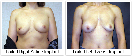 Failed saline breast implants