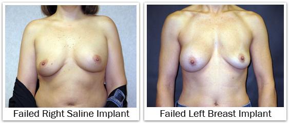 Failed saline breast implants