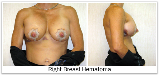 Right breast hematoma