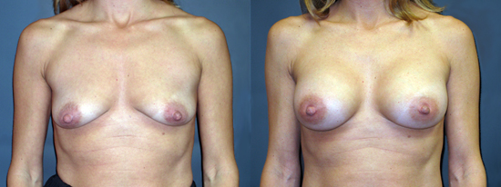 Dr Dembny silicone breast augmentation 182