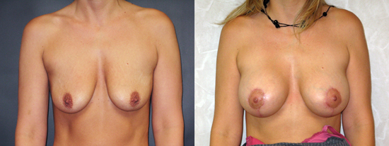 Dr Dembny breast augmentation and lift