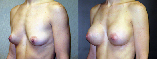 Dr Dembny silicone breast augmentation 185
