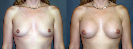 Dr Dembny silicone breast augmentation 79