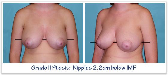Grade-II-Breast-Ptosis