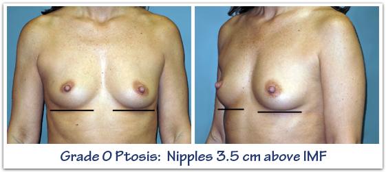 Grade-0-ptosis