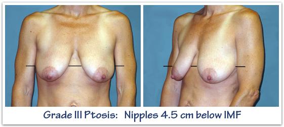 Grade-III-breast-ptosis