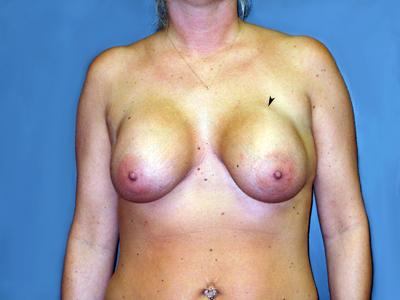 Grade-III-capsular-contracture-subglandular-saline-breast-implant