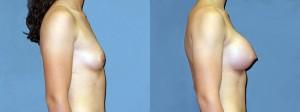 Patient-117-RLat-Natrelle-Silicone-Gel-Round-High-Profile-Breast-Augmentation-Milwaukee-WI
