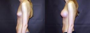 Patient-118-LLat-Silicone-Gel-Breast-Augmentation-Milwaukee-WI