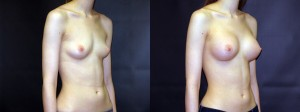 Patient-118-ROblq-Silicone-Gel-Breast-Augmentation-Milwaukee-WI