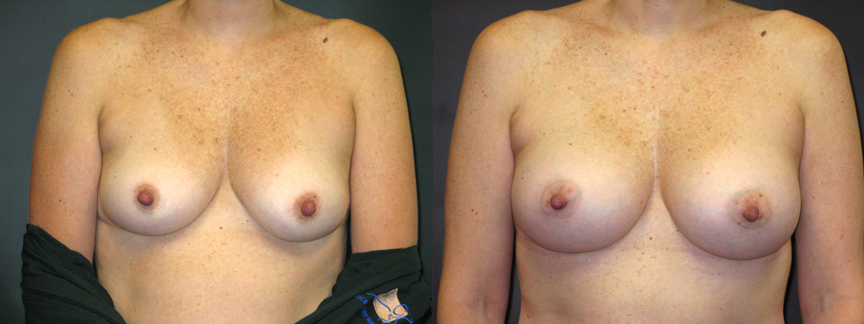 Are Augmentation breast breast implant information web true