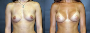 Patient-159-AP-Silicone-Gel-Breast-Augmentation-Milwaukee-WI