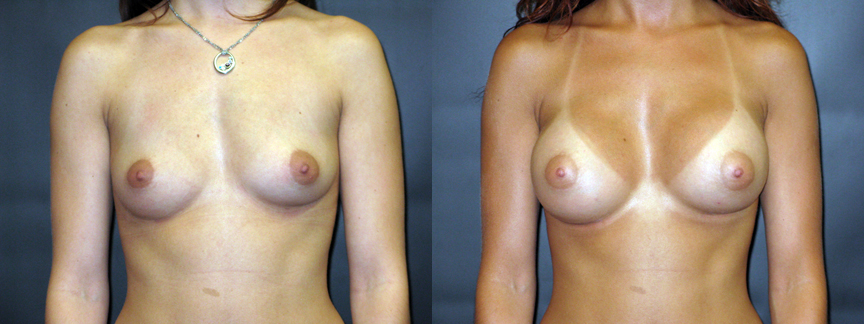 Does not Augmentation breast breast implant information web
