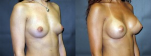 Patient-159-ROblq-Silicone-Gel-Breast-Augmentation-Milwaukee-WI