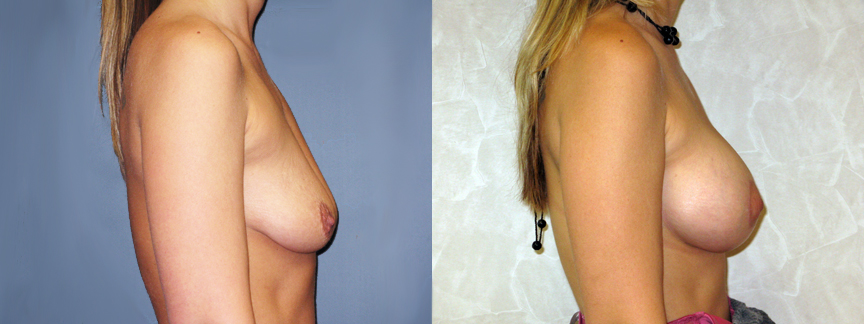 Augmentation breast breast implant information web think