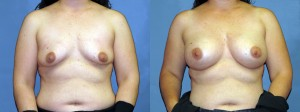Patient-668-AP-Natrelle-Silicone-Gel-Round-Moderate-Profile-Breast-Augmentation-Milwaukee-WI