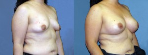 Patient-668-ROblq-Natrelle-Silicone-Gel-Round-Moderate-Profile-Breast-Augmentation-Milwaukee-WI