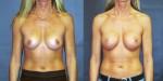 Patient-700-AP-Natrelle-410-Breast-Augmentation-Milwaukee-WI