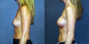 Patient-700-LLat-Natrelle-410-Breast-Augmentation-Milwaukee-WI