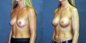 Patient-700-LOblq-Natrelle-410-Breast-Augmentation-Milwaukee-WI