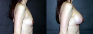 Patient-77-RLat-Silicone-Gel-Breast-Augmentation-Milwaukee-WI
