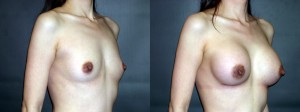 Patient-77-ROblq-Silicone-Gel-Breast-Augmentation-Milwaukee-WI