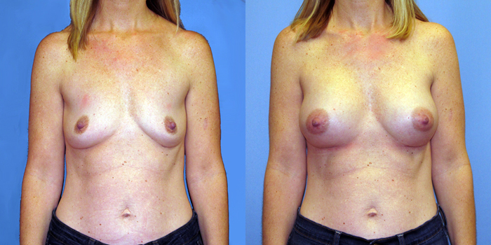 Augmentation breast breast implant information web what necessary