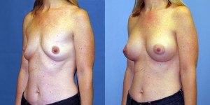Patient-771-LOblq-Natrelle-FM410-Breast-Augmentation-Cedarburg-WI