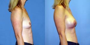 Patient-771-RLat-Natrelle-FM410-Breast-Augmentation-Cedarburg-WI