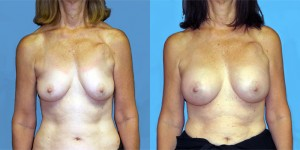 Patient-777-AP-Natrelle-Silicone-Round-Moderate-Profile-Breast-Augmentation-Milwaukee-WI