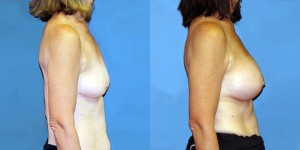 Patient-777-RLat-Natrelle-Silicone-Round-Moderate-Profile-Breast-Augmentation-Milwaukee-WI