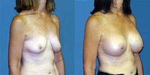 Patient-777-ROblq- Natrelle-Silicone-Round-Moderate-Profile-Breast-Augmentation-Milwaukee-WI