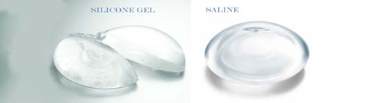 Saline and Silicone Gel Breast Implant Comparison