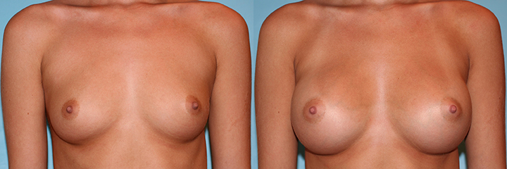 Ideal_Implant_Before-and-After-Picture